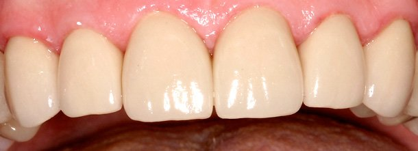 eugene oregon porcelain tooth repair