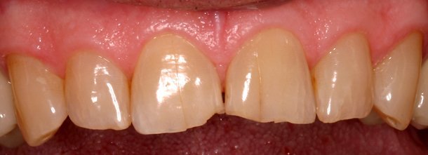 eugene porcelain tooth repair